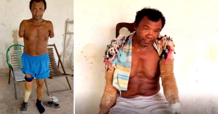 Internautas criam vaquinha para idoso que perdeu os braços em acidente e sonha ter suas próteses 4