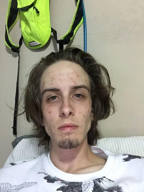 Travis antes de deixar o vício em drogas