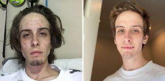 fotos antes e depois drogas capa