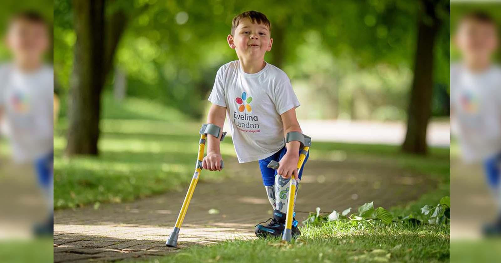 Menino que perdeu as pernas arrecada R$ 3 milhões para hospital que salvou sua vida 2