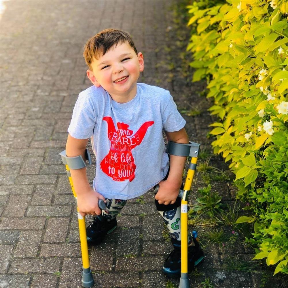menino sorrindo caminhando próteses muletas protéticas