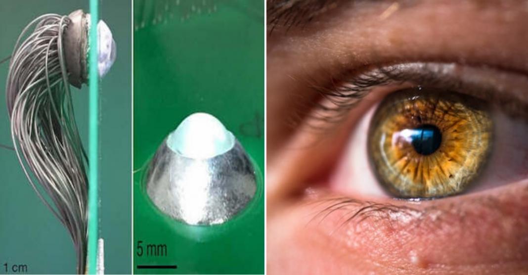 Olho biônico que imita retina pode devolver a visão de milhões de pessoas 2