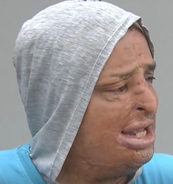 ambulante rosto desfigurado