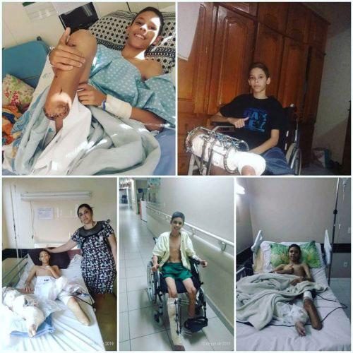 menino perna equerda amputada deitado leito hospital
