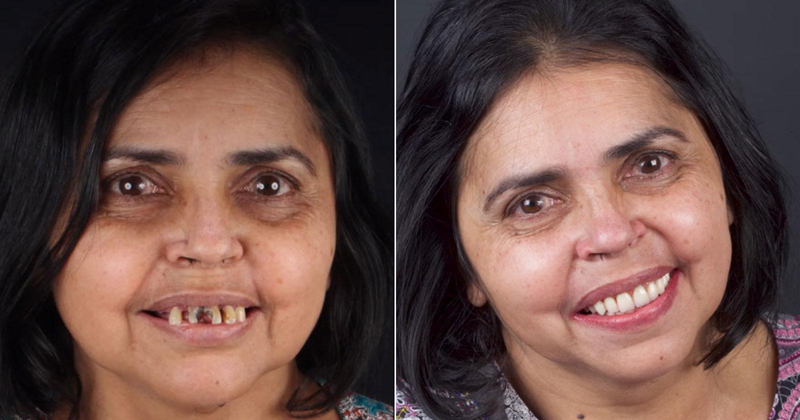 antes e depois de confeiteira que foi humilhada com novo sorriso