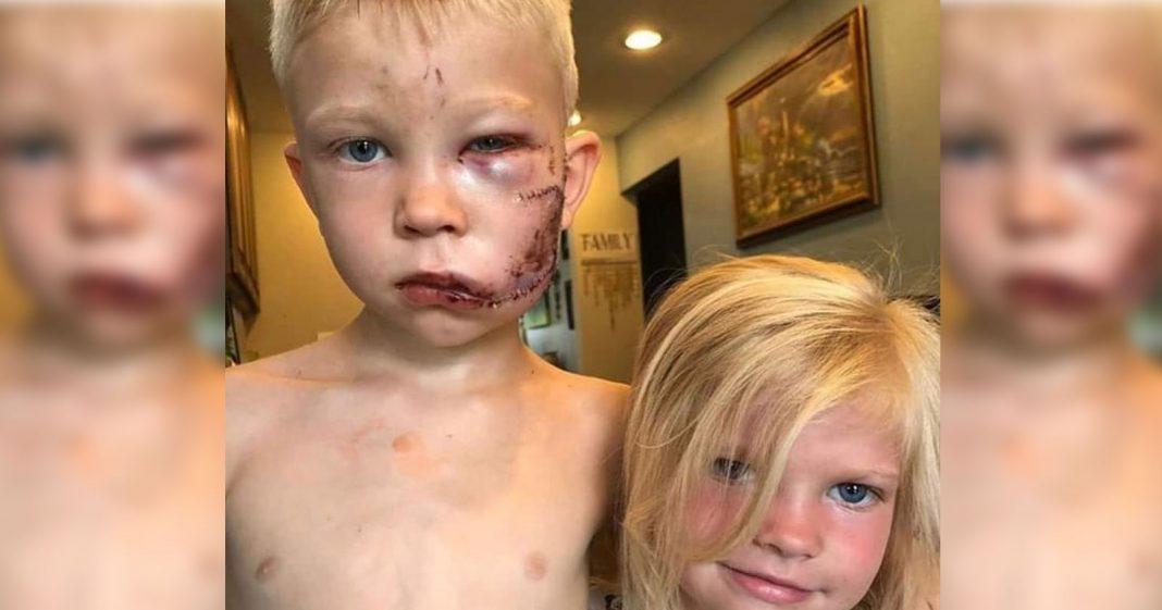 Menino salva irmã de ataque de cachorro, leva 90 pontos, e vira herói da internet 2