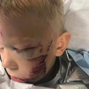 menino rosto ferido ataque cachorro proteger irmã
