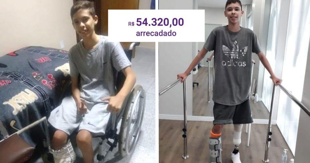 menino amputado caminha fisioterapia usando prótese