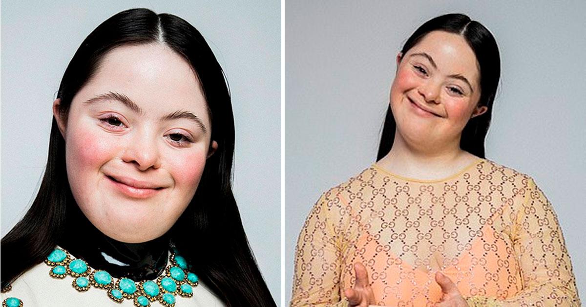 modelo com síndrome de down