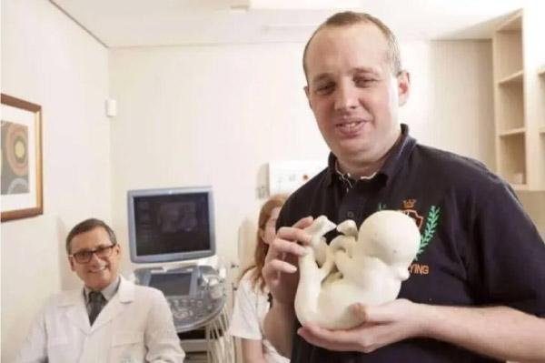 Pais cegos se emocionam ao tocar pela primeira vez o rosto de seu bebê, impresso em 3D 2