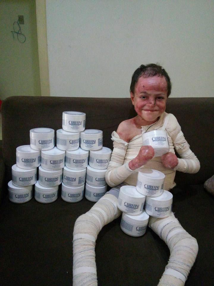menino enfaixado ataduras segurando pomadas