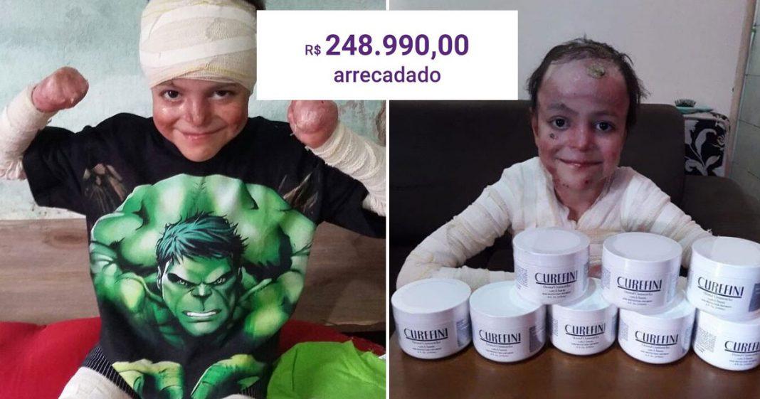 Vaquinha para tratamento de menino com doença rara e sem cura bate R$ 248 mil 2