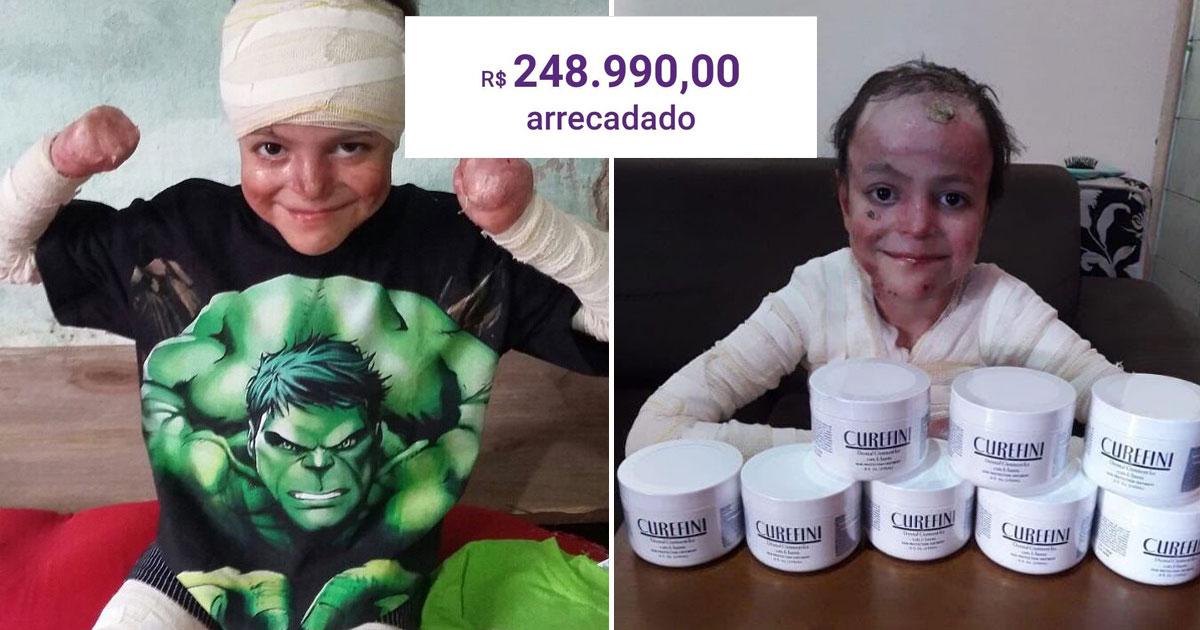 Vaquinha para tratamento de menino com doença rara e sem cura bate R$ 248 mil 4