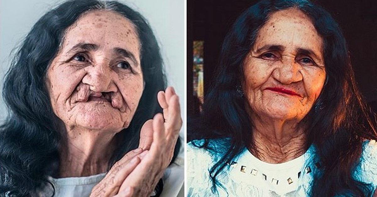 Aos 67 anos, idosa realiza sonho de passar batom após cirurgia e ela ficou linda! 2