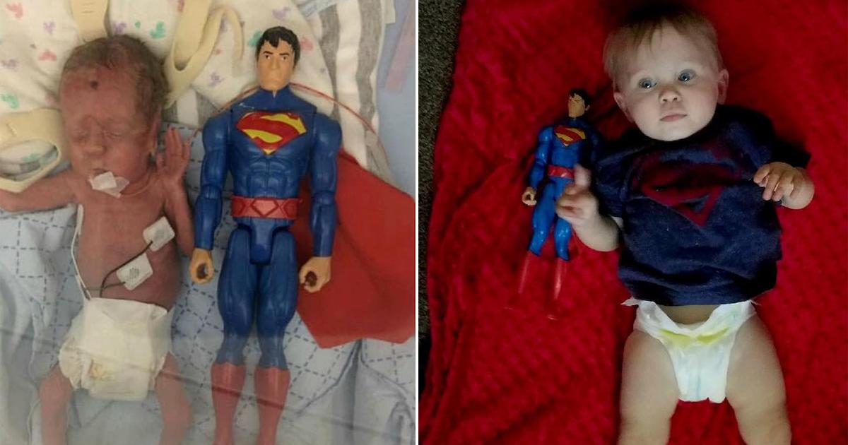 Mãe fotografa evolução milagrosa de filho nascido do tamanho de boneco do Super-Homem e fotos impressionam 10