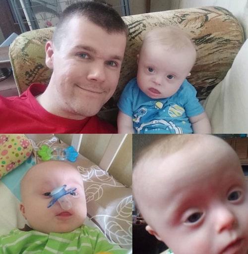 Mãe queria dar bebê com síndrome de Down para adoção, então pai decide criá-lo sozinho 2