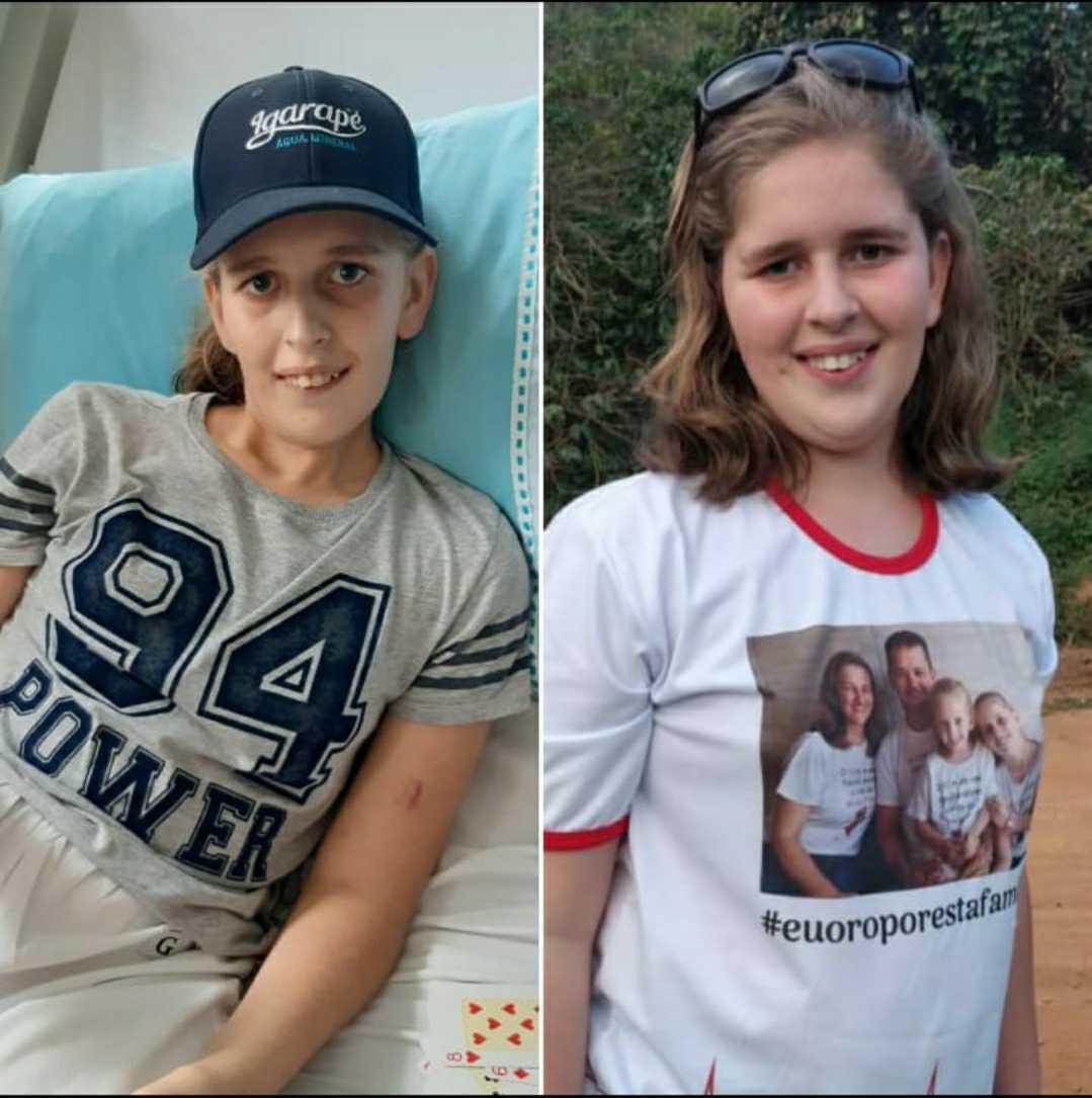 antes e depois de menina que fez transplante no coração