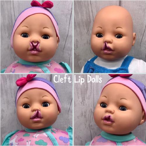 boneca com lábio leporino