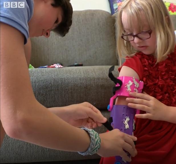 Menino cruza o oceano para presentear Chloe, de 8 anos, com prótese que fez exclusivamente pra ela 3