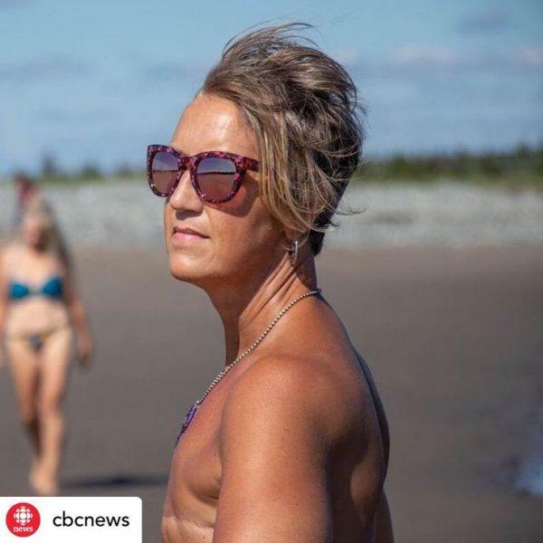 mulher supera câncer de mama