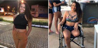 Jovem perdeu a perna em acidente de moto e sonha com prótese