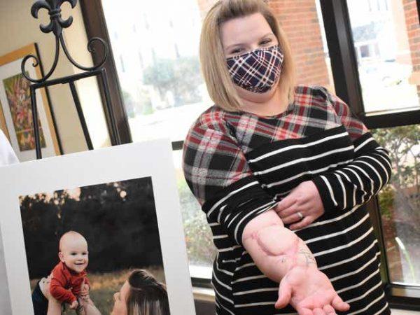 médicos recolocam braço de mulher