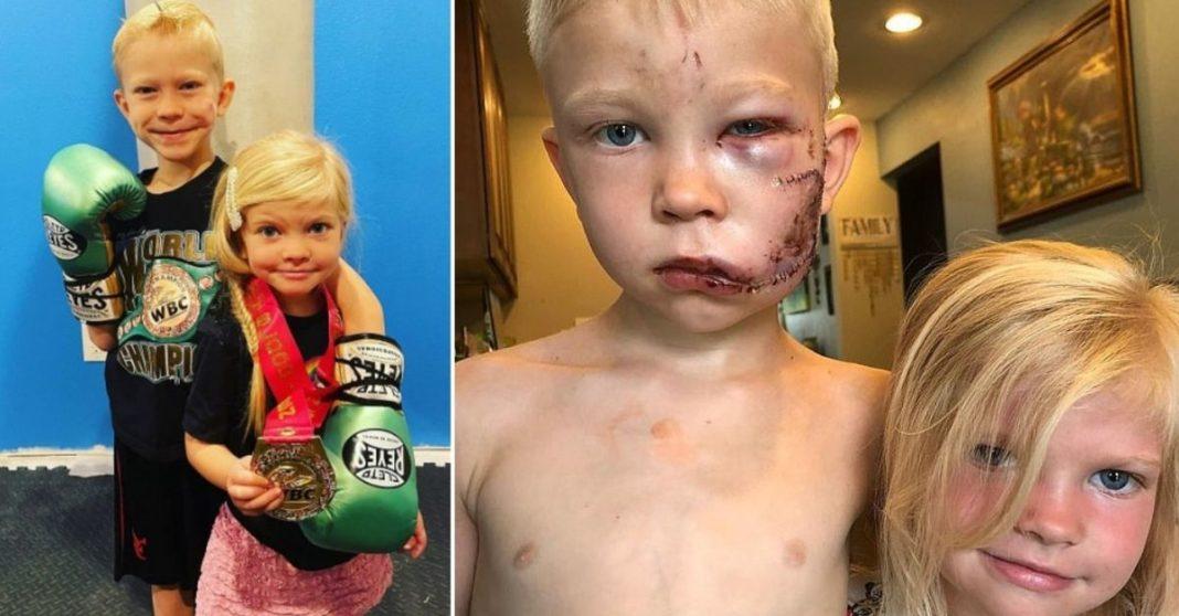 cicatrizes menino ataque cachorro