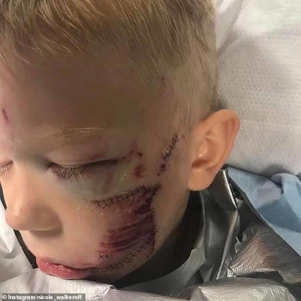 cicatrizes menino ataque cachorro 3