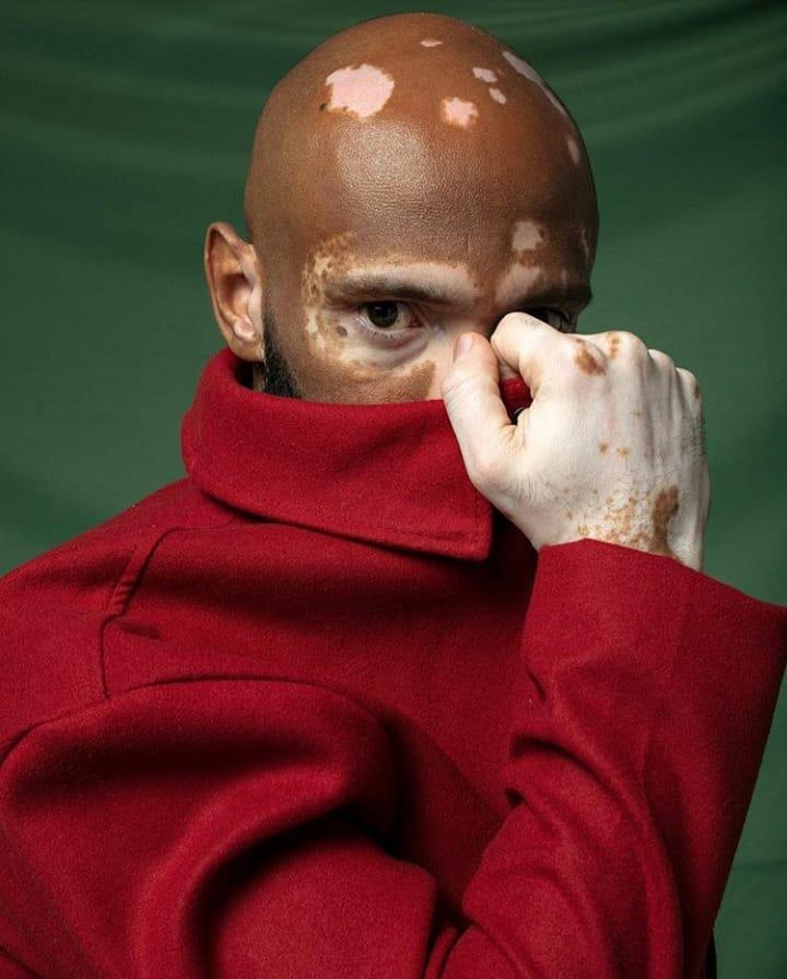 Akin Cavalcante, personagem do Cafezoom sobre aceitação ao vitiligo