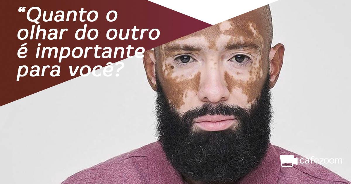 Uma vida com vitiligo: da dificuldade de se autoceitar à voz de 4 milhões de brasileiros 2