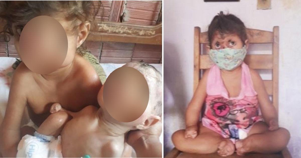 Com ajuda de vaquinha da VOAA, menina com má-formação fará sua primeira cirurgia 1