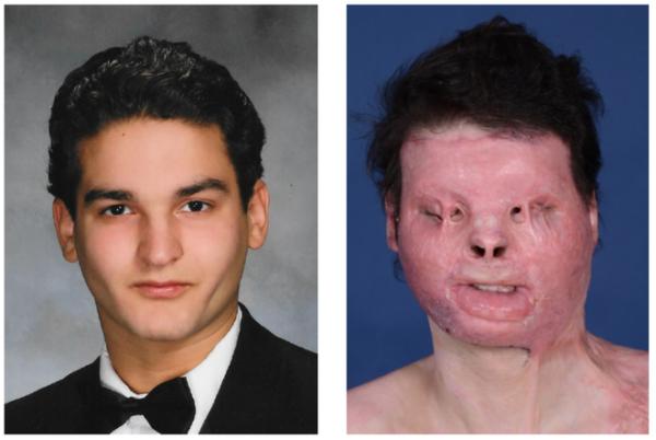 paciente do primeiro transplante de rosto e mãos bem-sucedido; à esquerda antes e à direita depois do acidente de carro