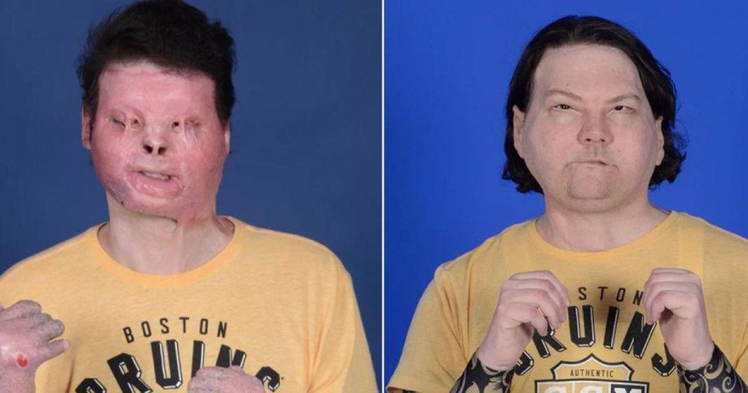 paciente do primeiro transplante de rosto e mãos bem-sucedido
