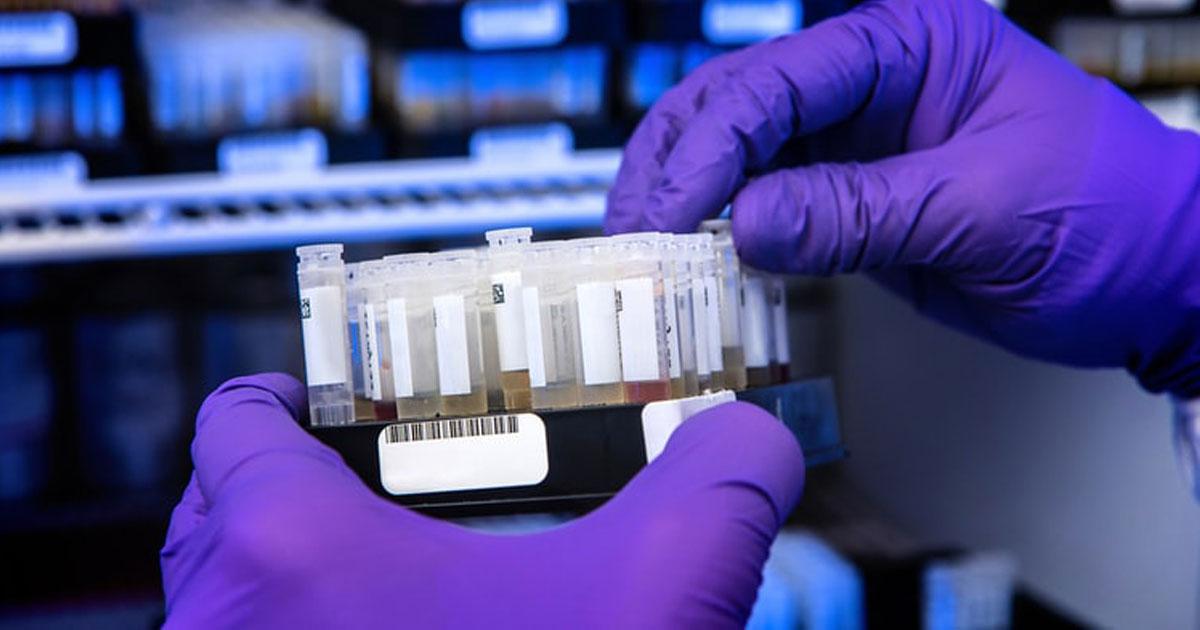 cientista manuseia frasco anticorpos covid-19