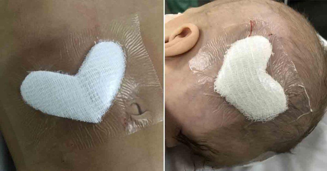 curativo formato coração cabeça criança após cirurgia