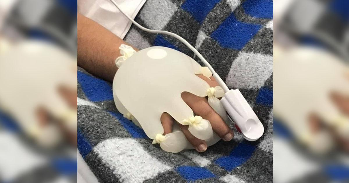paciente covid-19 segura luvas cirúrgicas preenchidas água morna