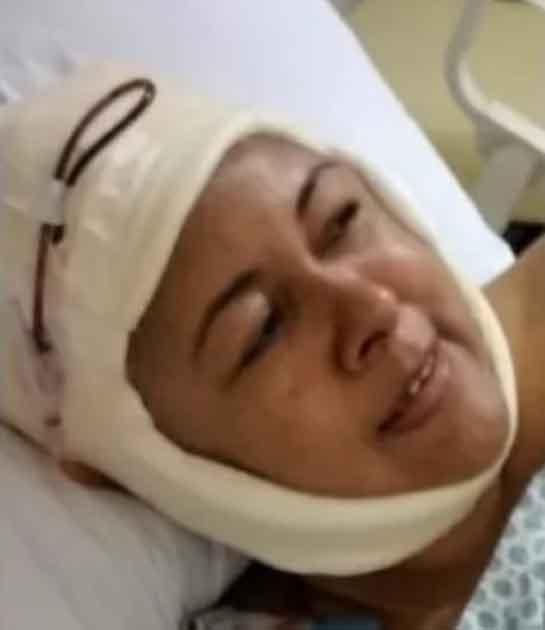 paciente câncer terminal cabeça enfaixada após cirurgias
