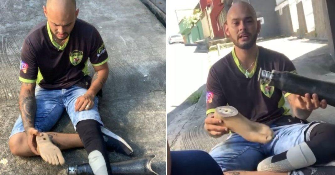 homem com prótese perna quebrada