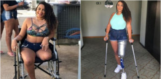 Kevelyn conseguiu prótese para perna amputada