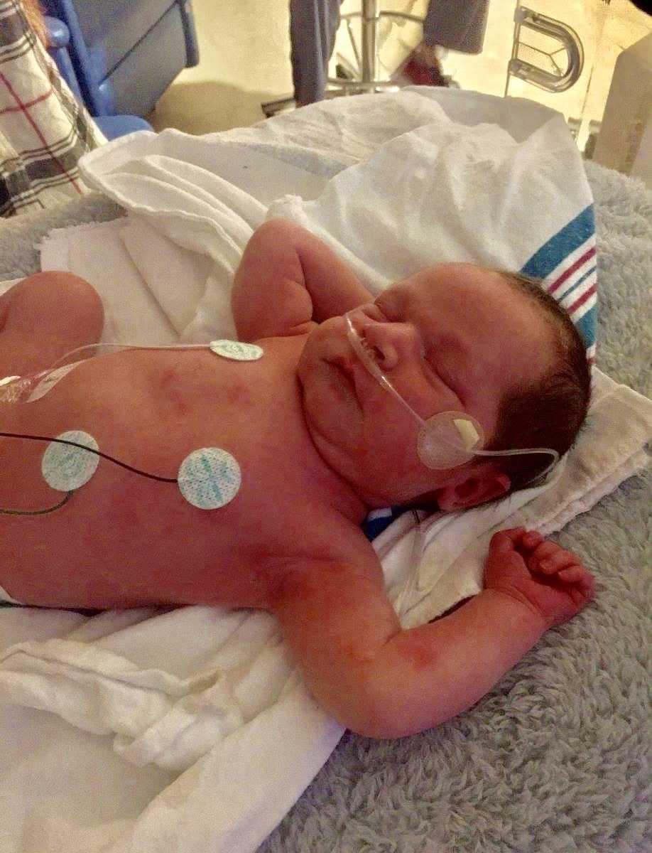 bebê recém-nascido recebe cuidados uti neonatal