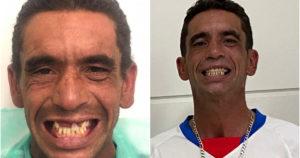 Antes e depois de tratamento dentário