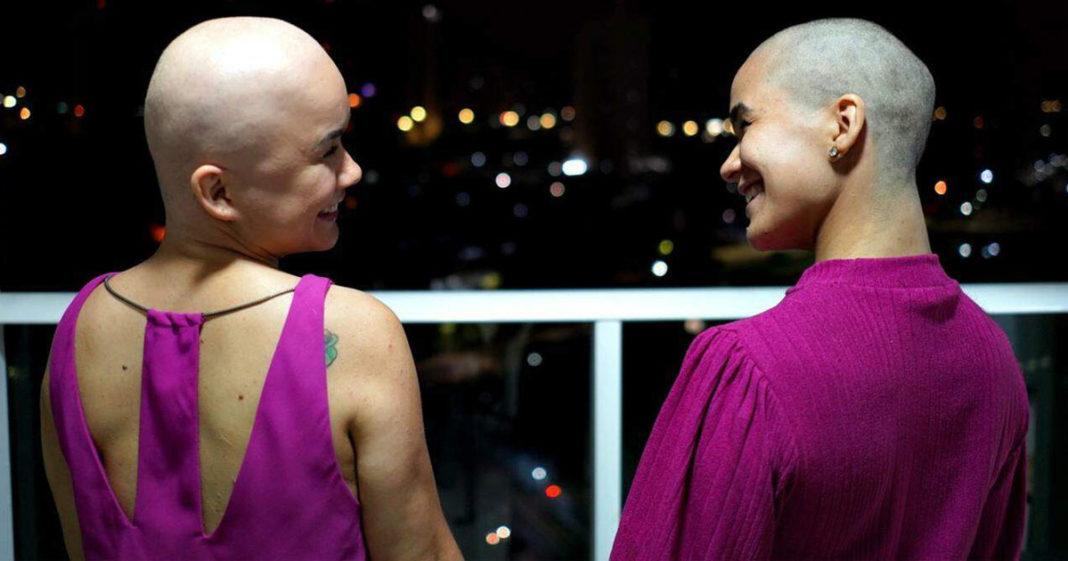 irmãs gêmeas cabeças raspadas se olham sorrindo