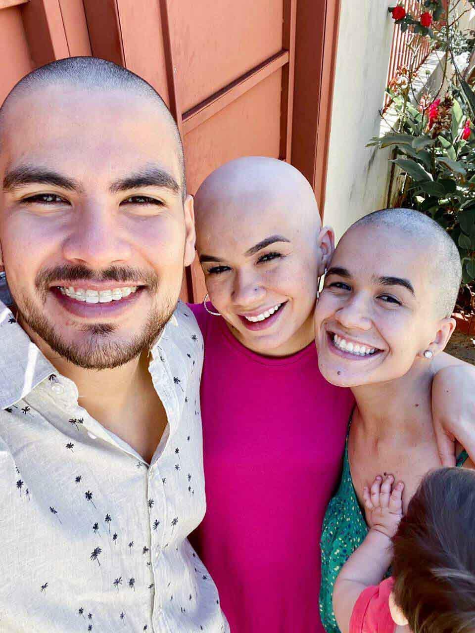 selfie marido irmã jovem alopecia cabeças raspadas