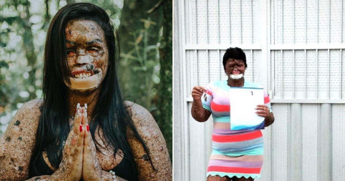 Mulher com xeroderma em frente a casa nova