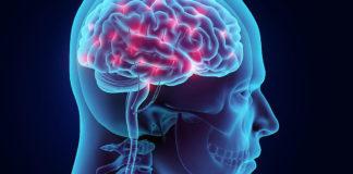 ilustração câncer no cérebro