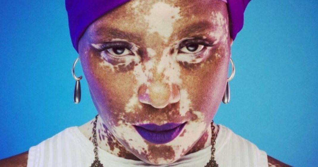 queniana com vitiligo e lenço cabeça