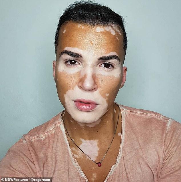 modelo com vitiligo rosa foto