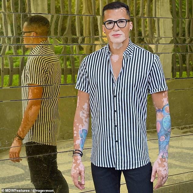 modelo com vitiligo vence depressão ao aceitar doença