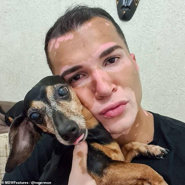 modelo com vitiligo posa foto com cachorro colo