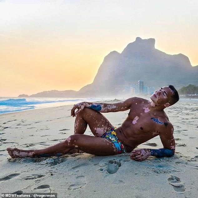 modelo com vitiligo posa em praia